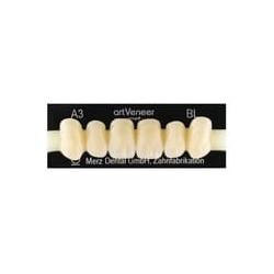 artVeneer zęby przednie góra