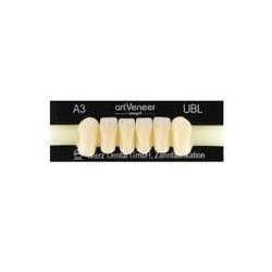 artVeneer zęby przednie dół