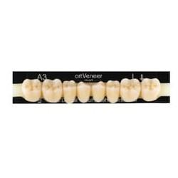 artVeneer zęby boczne dół